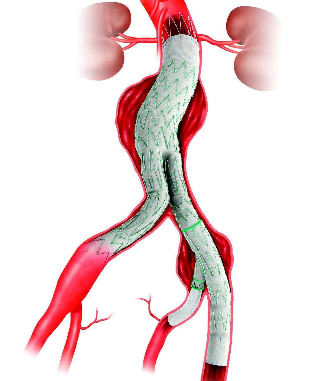 Behandlung von Aortenaneurysmen