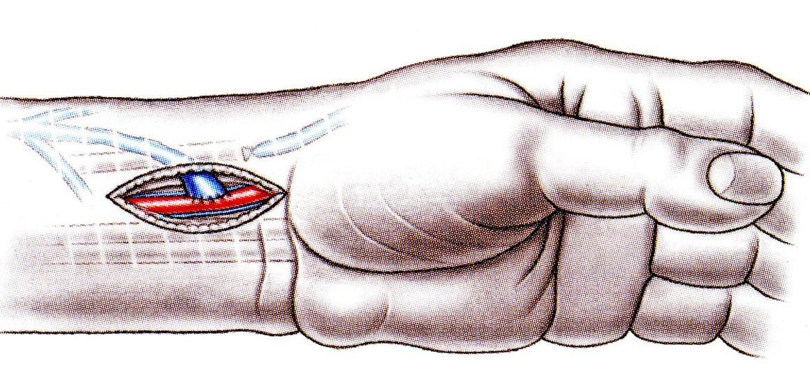 Dialysezugänge
