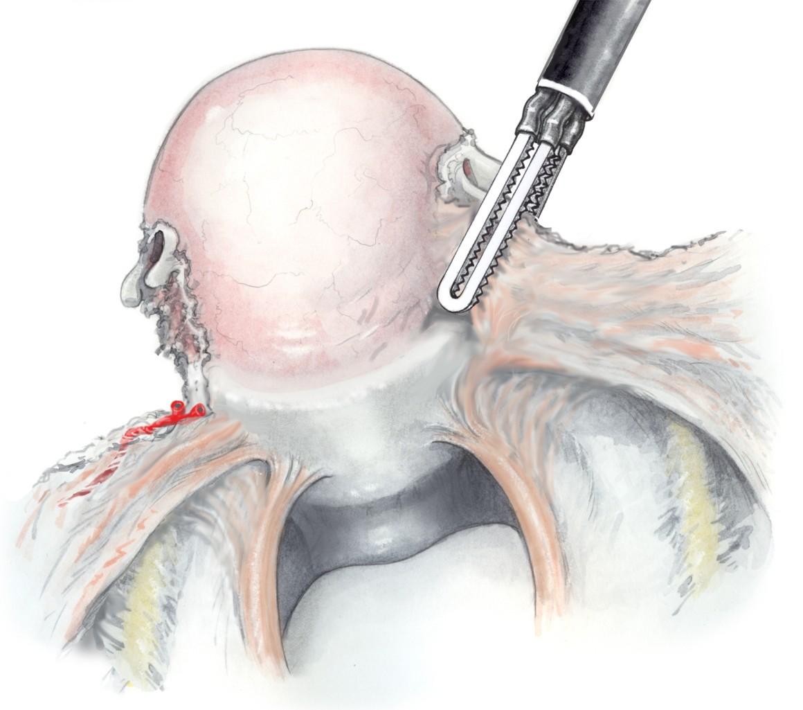 Erfahrungen gebärmutterentfernung Hysterektomie: Ablauf