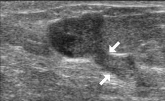 papillom brust entfernen oder nicht cancer la gat manifestari